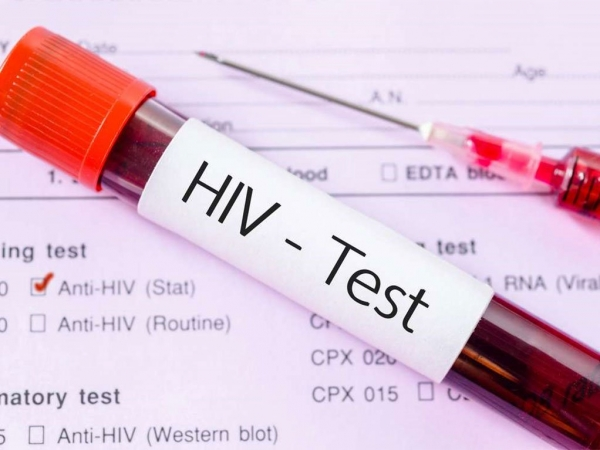 HIV Aids.jpg